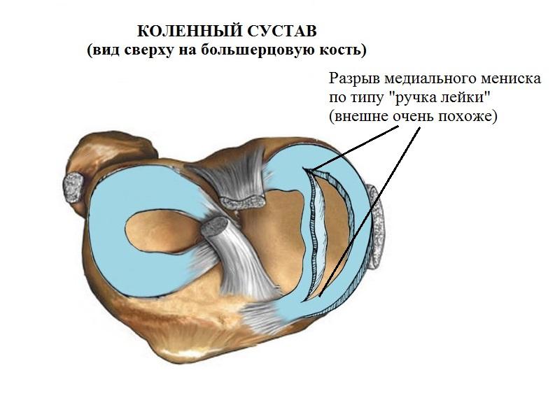 возникающую в области внутреннего мыщелка бедра