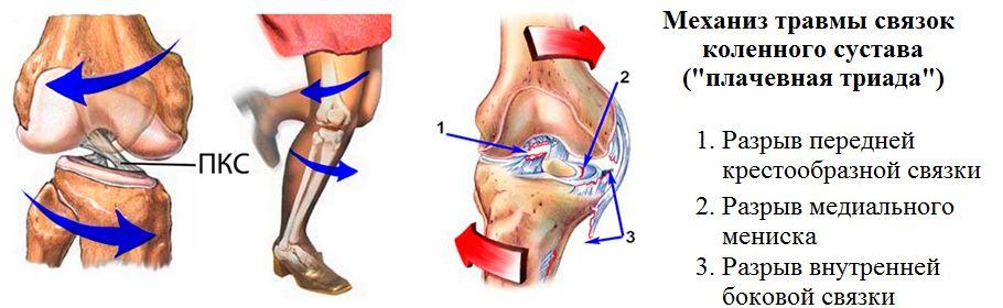 лечение перелома голеного сустава