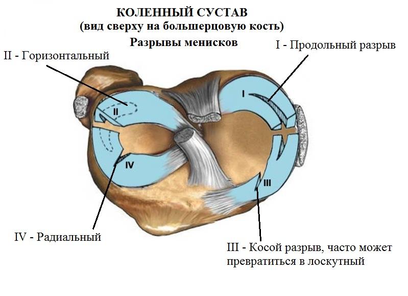 Разрыв мениска коленного сустава | Кислицын Михаил Андреевич
