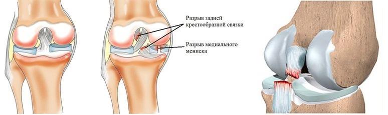 Разрыв задней крестообразной связки коленного сустава реабилитация фиксатор лучезопястного сустава