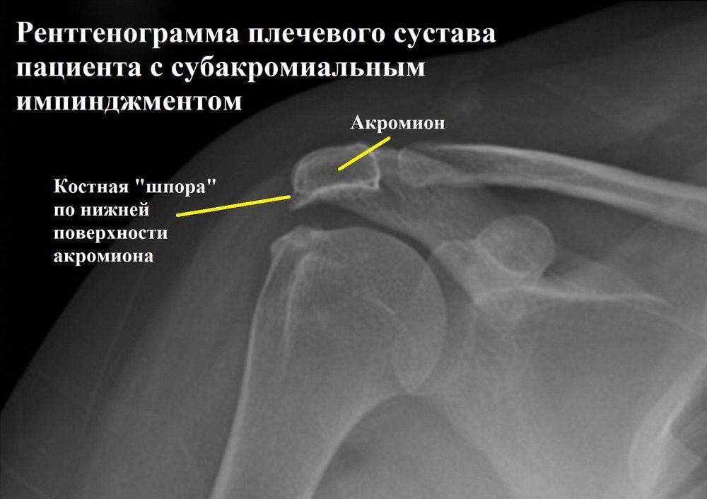 Изображение - Субакромиальный импиджмент плечевого сустава 2
