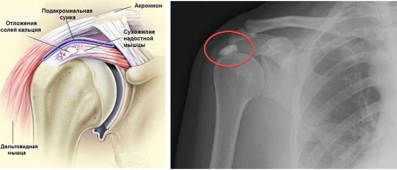 Кальцифицирующий тендинит плечевого сустава замена коленного сустава иваньковское шоссе